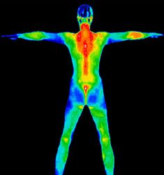 thermal-imaging-near-Philadelphia-Dr-Andrew-Lipton-Narberth-Family-Medicine